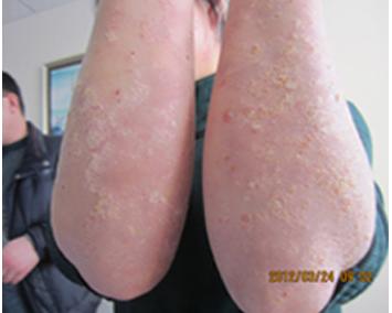 青少年患有牛皮癣的病因有哪些