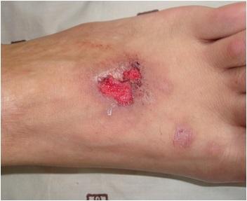 寻常型银屑病的诊断方法